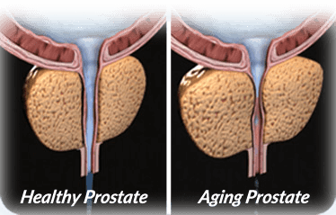 What Happens as our Prostate Ages